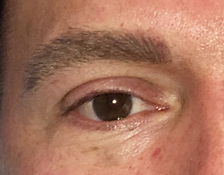 Men's eyebrow after the procedure gives more defined and youthful looking brows.