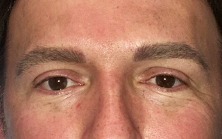 Men's eyebrows after the procedure.