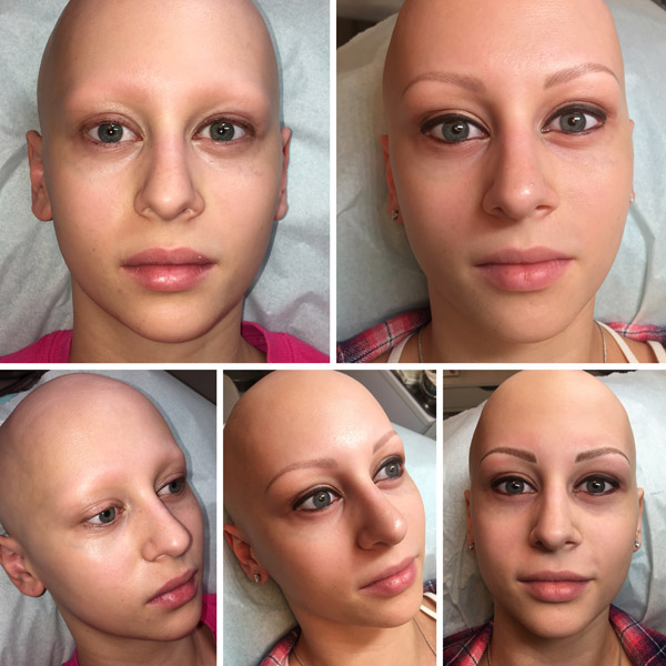 Medical Micropigmentation Procedures