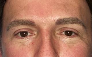 Men's eyebrows after the procedure.