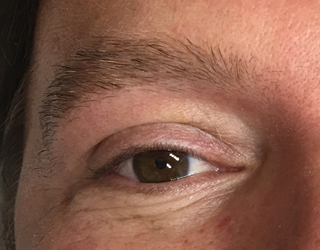 Men's eyebrow before the procedure lack the definition due to thining or the hair.