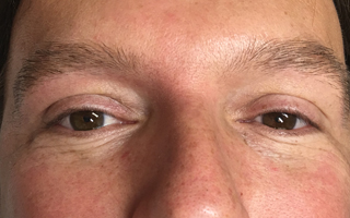 Men's eyebrows with lack of definition due to thining hair before the procedure.